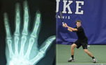 After a run-in with a fence during a tennis match in San Diego, redshirt junior Cale Hammond did not need an X-ray to see he lost the top joint of his left index finger.