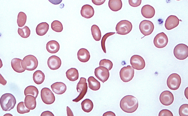 New Duke research shows that sickle cells, the crescent-shaped cells above, may play a role in treating cancer tumors—despite their association with the disease sickle cell anemia.
